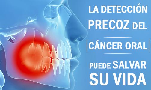 El diagnóstico precoz del cáncer oral
